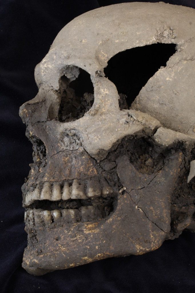 The skull of one of the individuals excavated at College Green (Copyright: Rubicon Heritage Services Ltd)