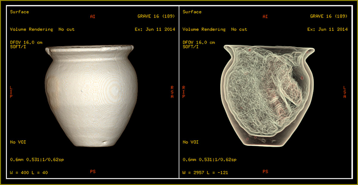 Rhodaus Town Ceramics CT scans  Images: Canterbury Archaeological Trust